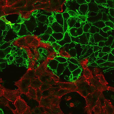 "Using light, ""spark"" cells (green) and automation, Entcheva's lab speeds up the process of drug screening in heart cells (red) t"