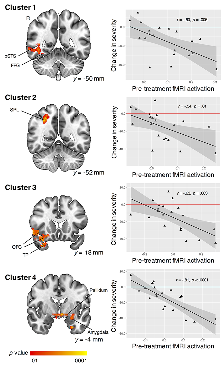 Using fMRI, researchers identified four distinct brain regions (left column) in 20 children with ASD who were shown images containing biological vs. scrambled motion before treatment. When their brain responses were higher in these regions, they were more able to respond positively to PRT. The scatterplots (right column) indicate that children who responded more strongly to biological motion initially tend to show more of a decrease in the severity of their ASD symptoms after PRT, suggesting that the treatment was more beneficial. Credit: Daniel Yang