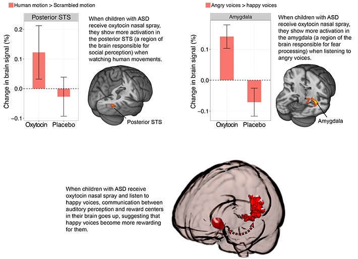 Autism Behaviors Show Unique Brain >> Two New Tools To Enhance Effectiveness Of Behavioral Therapy In