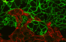 """Using light, """"spark"""" cells (green) and automation, Entcheva's lab speeds up the process of drug screening in heart cells (red) t"""
