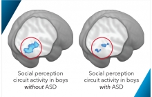 Brain scans of boys with and without ASD